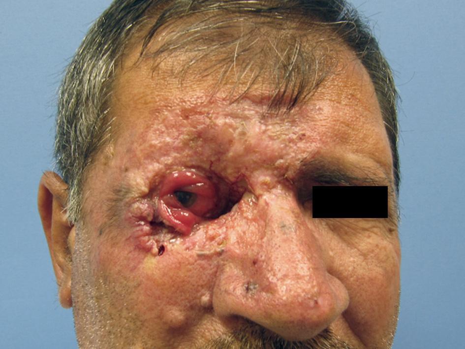 базалиома с поражением кожи вокруг правого глаза, разрушением глазного яблока