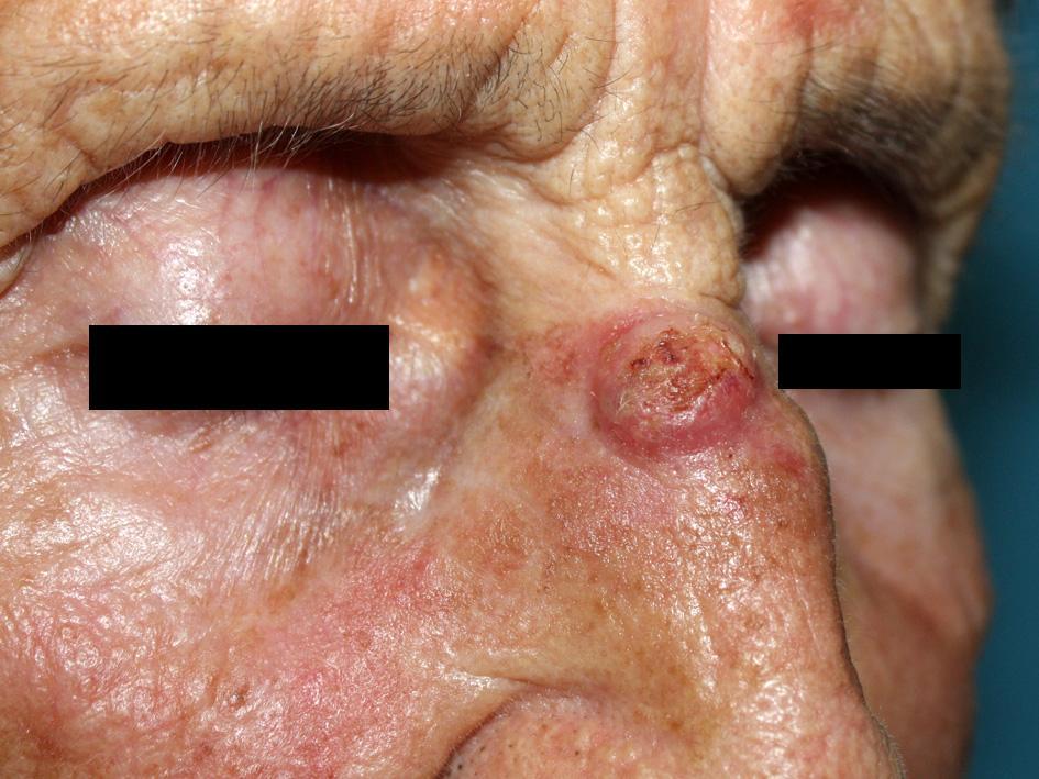 Базалиома кожи носа, имеющая узловую форму роста.