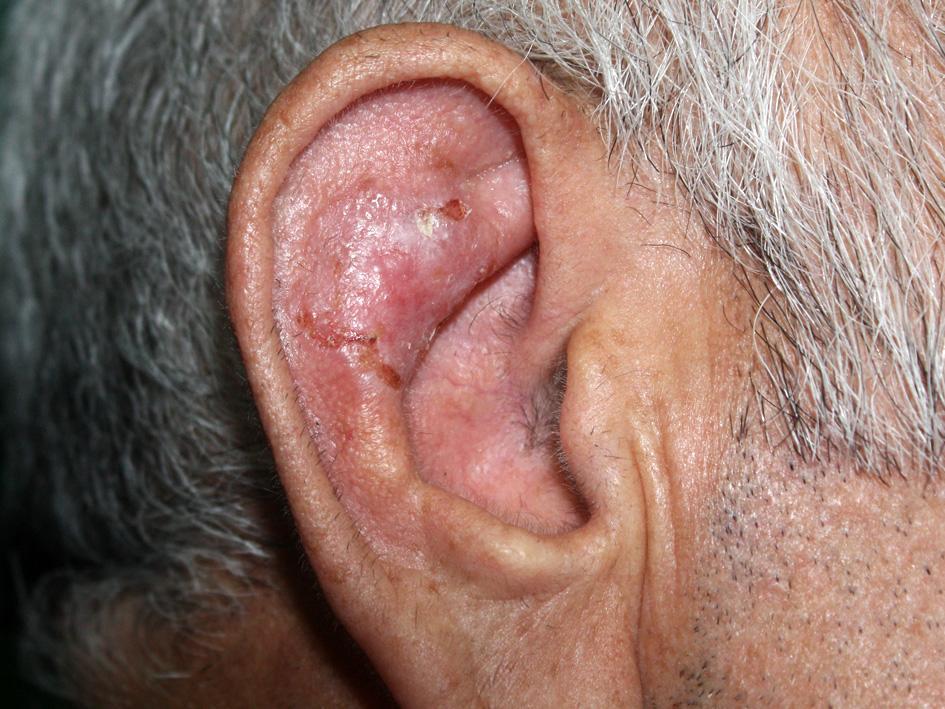 базалиома кожи уха, едва заметна из-за расположения и поверхностной формы роста