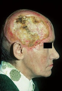 Базалиома кожи головы крупных размеров прорастает в кости, постепенно разрушая их, видна оболочка головного мозга