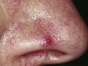 Опухоль кожи представлена центральной папулой с густой сетью расходящихся из нее сосудов.