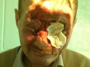 На фото базалиома огромных размеров, разрушившая большую часть лица. Края по-прежнему остаются валикообразными.