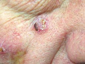 Узловая базалиома с корочкой на поверхности, похожа на заживающий гнойник. По краям заболевания появляется изъязвление.
