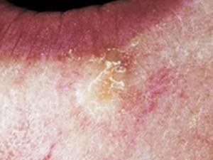 Базасквамозный рак кожи в виде желтоватой слегка возвышающейся бляшки с большим количеством корочек.