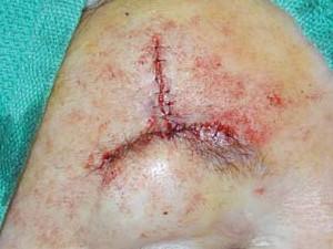 Рана, зашитая отдельными швами, напоминает перевернутую букву Т.