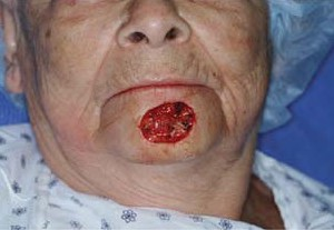 Округлая рана на подбородке после удаления базалиомы