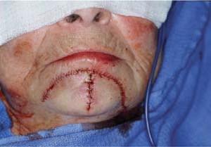 Рана, зашитая отдельными швами, напоминает букву Э, обращенную дугой в сторону нижней губы