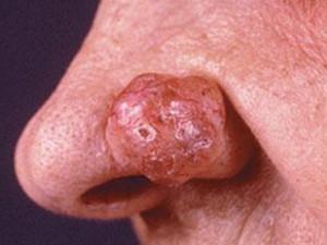 Крупный узел базалиомы, твердый красноватый блестящий с небольшими изъязвлениями на коже крыла носа.