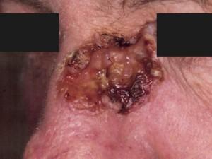 Крупная язва с грязно-коричневыми корками и возвышающимися краями. Распространяется от боковой поверхности носа до внутреннего угла глаза