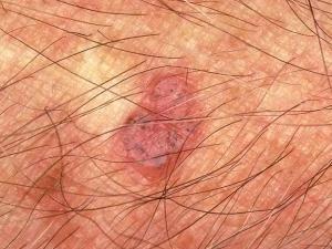 Возвышающаяся опухоль розового цвета с маленькими черным пятнами, блестит.