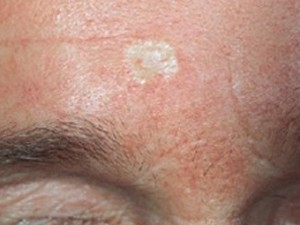 Склерозирующая базалиома лба, белого цвета бляшка с возвышенными краями, сильно напоминающая рубец или одну из форм дерматологического заболевания под названием склеродермия.