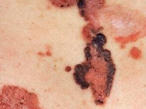 На фото базалиомы кожи туловища, имеют вид красных бляшек с вкраплениями коричневого цвета и маленькими корочками