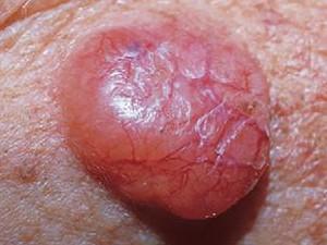 На фото опухоль в виде узла желтоватого цвета, имеет много сосудов, более прозрачна, чем обычная базалиома.