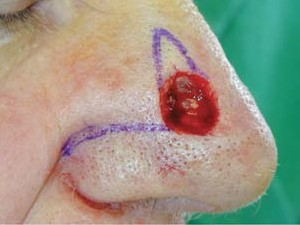 Рана округлой формы после удаления тканей базалиомы, расположена на боковой поверхности носа