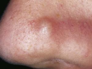 Плотная телесного цвета опухоль в виде полусферы, имеет отдельные, едва заметные расширенные сосуды