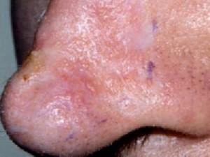 Кожа носа рубцово изменена, местами бледная, местами имеет едва заметные малые очаги базалиомы