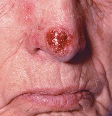 Вирус папилломы человека у мужчин на головке как лечить