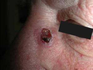 Опухоль в виде бляшки с коркой на поверхности, края опухоли слегка возвышаются