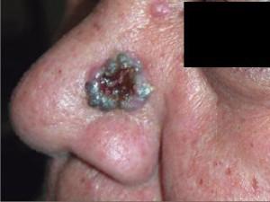 Опухоль с бугристыми блестящими черными краями, в центре изъязвление