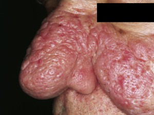 Множественные дольки ткани, покрытой красной кожей, распространяются на нос и щеки