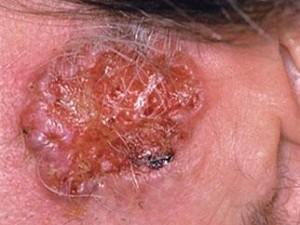 Крупная базалиома предушной области с неровной бугристой красной поверхностью, края валикообразные. Еще одна грызущая язва на коже лица.