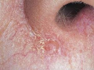Ранняя базалиома кожи верхней губы с начальными признаками.