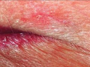 Базалиома верхней губы поверхностной разновидности, в виде участка кожи с непонятным покраснением, местами побелением кожи