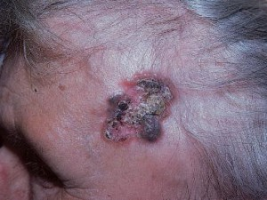 Фото пигментного базально-клеточного рака с возвышающимися краями