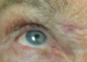 Шрам после криодеструкции. Светло-розовое петно на границе брови и носа