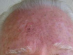 Небольшое шелушение на коже лба, признаков шрама от базалиомы нет