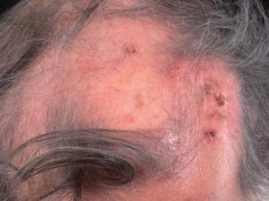На голове в центральной области волосы отсутствуют. Множество новых базалиом в области облысения, покрыты корочками.