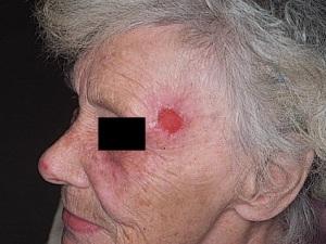 Лечение рака кожи - хирургическое (операция), лучевая терапия, химиотерапия