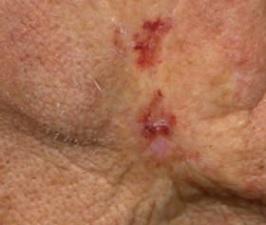 Базалиома кожи лица лечение лучевой терапией thumbnail
