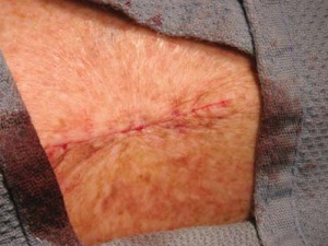 Рана зашита косметическими швами, не заметными с поверхности кожи