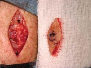 Базалиома удалена. Видна кровоточащая рана. Лоскут кожи лежит отдельно