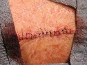 Рана затянута обычными отдельными узловыми швами