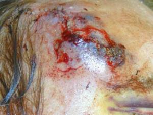 Кровоподтек в области раны от удаления базалиомы
