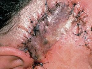 Почернение края лоскута в области раны после удаления базалиомы