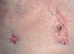 Рубцы после лучевой терапии, тонкие белые, с сетью сосудов