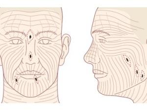 Линии натяжения кожи полезны любому онкологу при удалении базалиомы