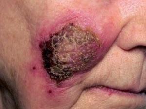 Покраснение кожи вокруг базалиомы от применения крема Алдара (имихимод)