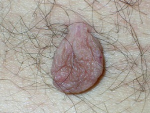 На фото телесного цвета крупная папиллома кожи туловища