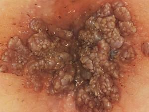 Папилломы заднего прохода в виде коричневых зерен со множеством зубчиков. Возникают у женщин под действием вируса.