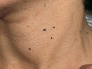 Небольшие темного цвета папилломы в виде выростов почти округлой формы.