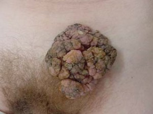 Крупная опухоль в виде цветной капусты разнородной окраски, Бушке-Левенштейн