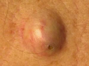 Пузырь, заполненный сальным содержимым - атерома кожи или эпидермальная киста.