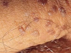 Маленькие коричневые плотные бляшки на коже члена. Вызваны вирусом папилломы