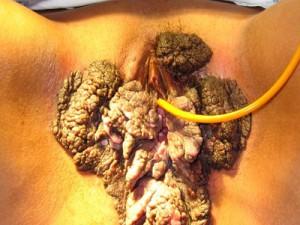 Огромные слившиеся кондиломы половых губ, коричневого цвета, вида цветной капусты. Вирус папилломы у женщин - главная причина