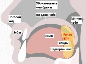 На рисунке изображено расположение ротоглотки, включает корень языка, миндалины, язычок, мягкое небо. Зона поражения вирусом папилломы