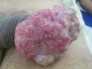 Бугристя ткань розового цвета, поражает всю головку полового члена. Рак полового члена из-за вируса папилломы у мужчин